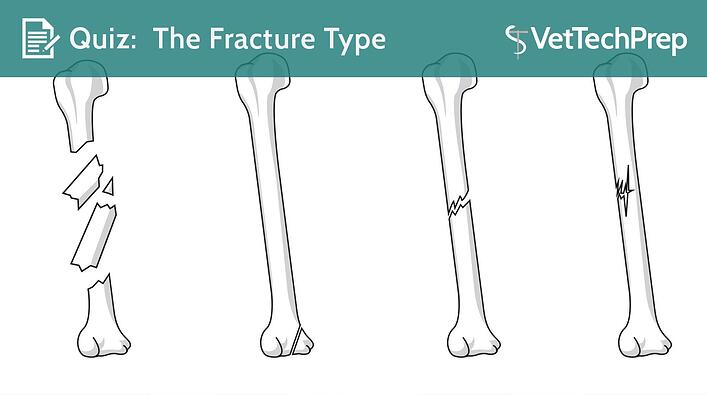 QUIZ-The-Fracture-Type.jpg